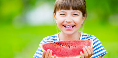 Maintaining a Proper Diet with Braces