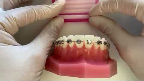 How to apply Orthodontic Wax